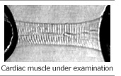 Cardiac muscle under examination
